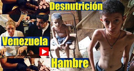 Venezuela Hambre Y Desnutricion