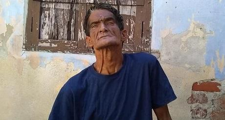 Cuba Potencia Medica Niega atencion a cubano con problemas mentales