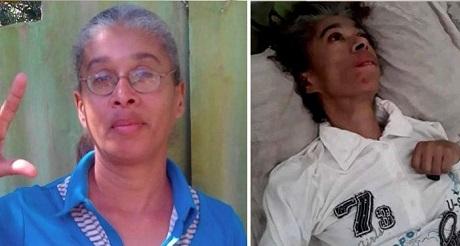 Opositora Jacqueline Borrego muere por negligencia castrista